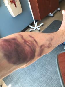 Ken's arm after blood draws